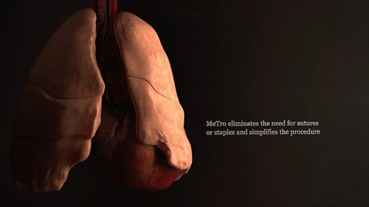 El pegamento quirúrgico que cura en 1 minuto ¡Como por arte de magia!